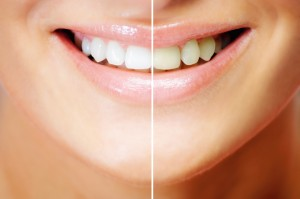 Dickson-Dentalcare-teeth-whitening