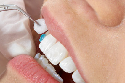 Dickson-Dentalcare-Dental-Veneers